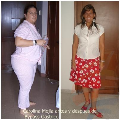 Bariatric surgery Colombia, Bariatric surgery Cali Colombia.